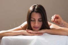 acupuncture-newbie-shares-her-experience